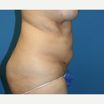 25-34 year old woman treated with Liposuction before 3225750