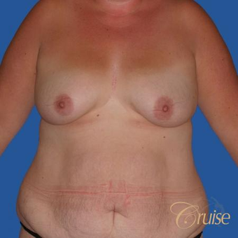 Lollipop Breast Lift before 3501346