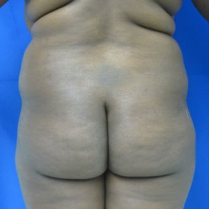 Liposuction before 3094171