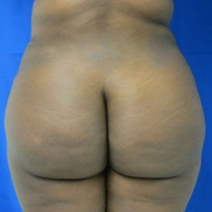 Liposuction after 3094171