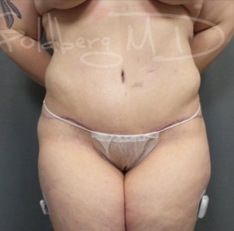 Tummy Tuck with Liposuction to Flanks after 3217808