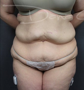 Tummy Tuck with Liposuction to Flanks before 3217808