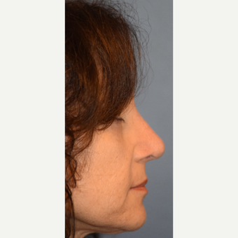55-64 year old woman treated with Rhinoplasty after 3245666