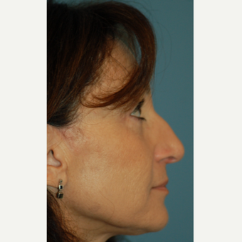 55-64 year old woman treated with Rhinoplasty before 3245666