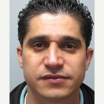 25-34 year old man treated with Rhinoplasty before 3224729
