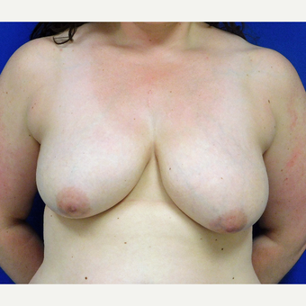 25-34 year old treated with Breast Lift with Implants.  before 3401298