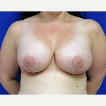 25-34 year old treated with Breast Lift with Implants.  after 3401298
