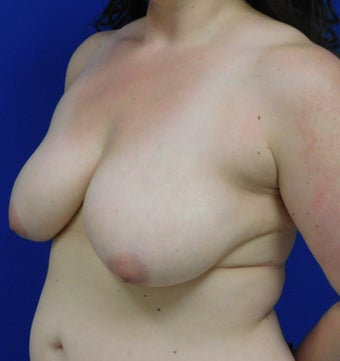 25-34 year old treated with Breast Lift with Implants.  3401298
