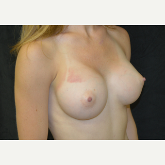 25-34 year old woman treated with Breast Augmentation after 3423968