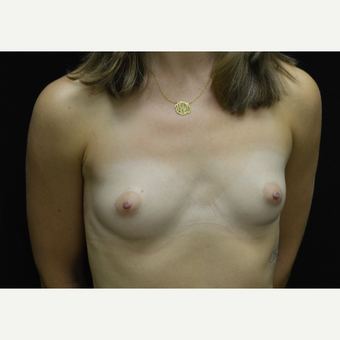 25-34 year old woman treated with Breast Augmentation before 3423968