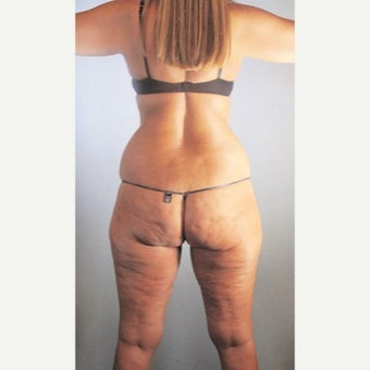 35-44 year old woman treated with Liposuction before 2508708