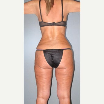 35-44 year old woman treated with Liposuction after 2508708