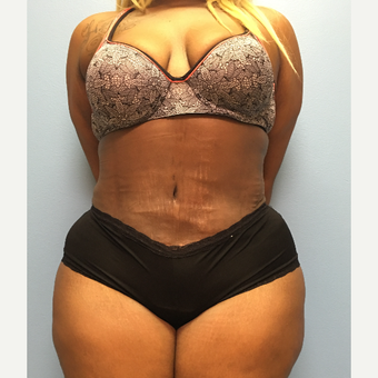30 year old woman treated with Tummy Tuck and Lipo 360 after 3174726