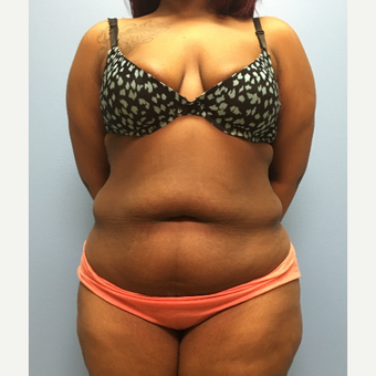 30 year old woman treated with Tummy Tuck and Lipo 360 before 3174726