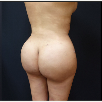 25-34 year old woman treated with Liposculpture after 3286494