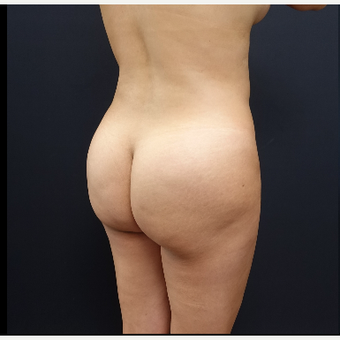 25-34 year old woman treated with Liposculpture before 3286494
