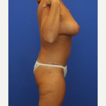48 year old woman treated with Mommy Makeover (tummy tuck and breast lift) after 2207356