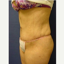 45-54 year old woman treated with Mini Tummy Tuck after 2058543