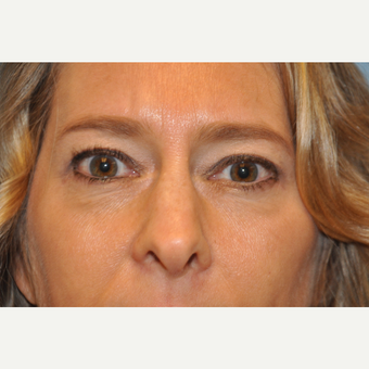 45-54 year old woman treated with Upper and Lower Eyelid Surgery after 3075335