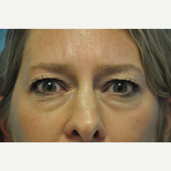 45-54 year old woman treated with Upper and Lower Eyelid Surgery before 3075335
