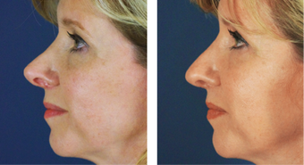 Female Revision Rhinoplasty