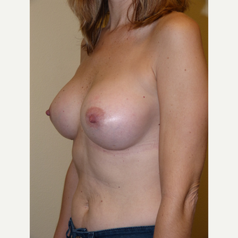 Breast Implants after 3807067
