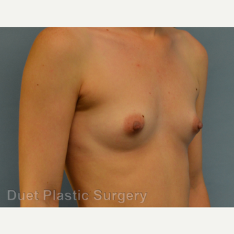 25-34 year old woman treated with Breast Augmentation before 3342194