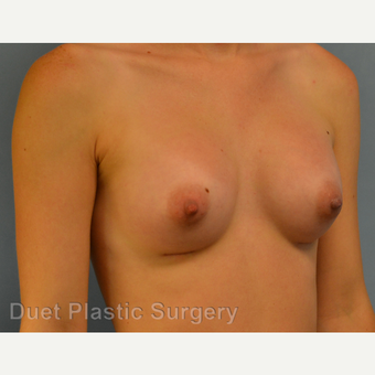25-34 year old woman treated with Breast Augmentation after 3342194