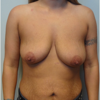 25-34 year old woman treated with Breast Lift with Implants before 3143366