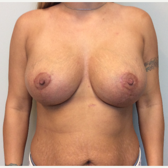 25-34 year old woman treated with Breast Lift with Implants after 3143366