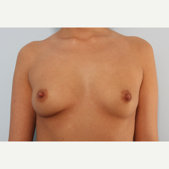 Breast Augmentation before 3345561