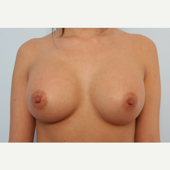 Breast Augmentation after 3345561