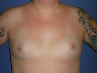 Transgender Breast Augmentation before 1330759