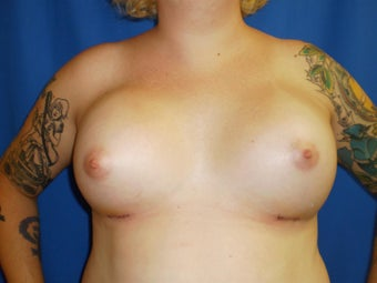 Transgender Breast Augmentation after 1330759