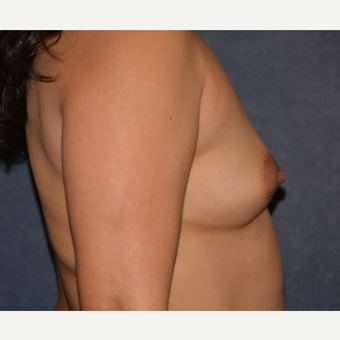 35-44 year old woman treated with Breast Implants before 3455180