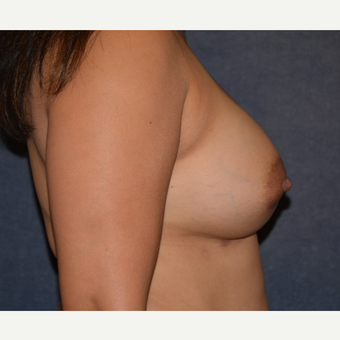 35-44 year old woman treated with Breast Implants after 3455180
