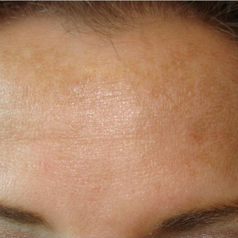 25-34 year old woman treated with Botox after 3391163