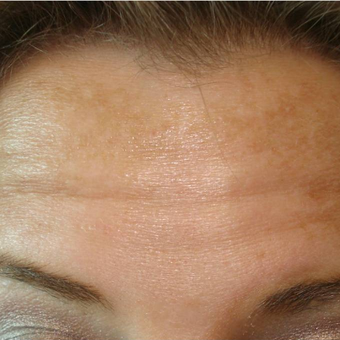 25-34 year old woman treated with Botox before 3391163
