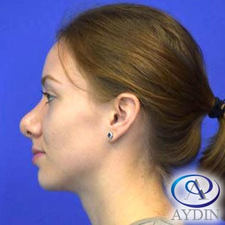 18-24 year old woman treated with Rhinoplasty after 3325424