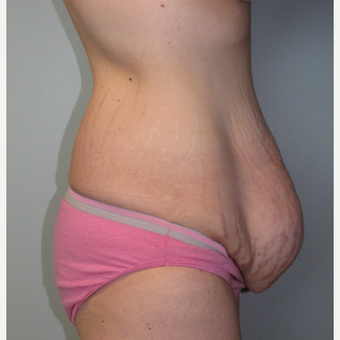 25-34 year old woman treated with Panniculectomy & Hernia Repair before 3141368