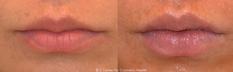 Lip Enhancement With Dermal Fillers before 1447051