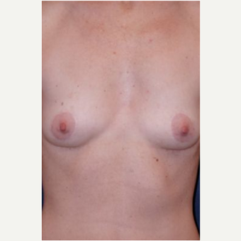 Breast Augmentation before 3720794
