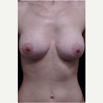 Breast Augmentation after 3720794