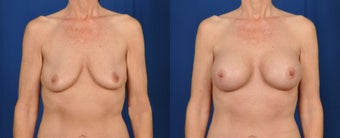 45-54 year old woman treated with Breast Augmentation before 3226361