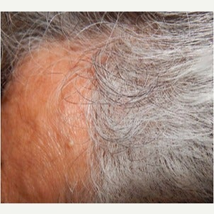 PRP for Hair Loss before 2236143