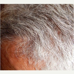 PRP for Hair Loss after 2236143