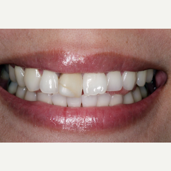 25-34 year old woman treated with Dental Implants before 3629687