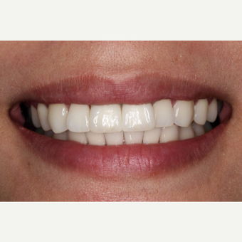 25-34 year old woman treated with Dental Implants after 3629687