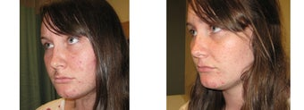 Mole Removal photos before 951884