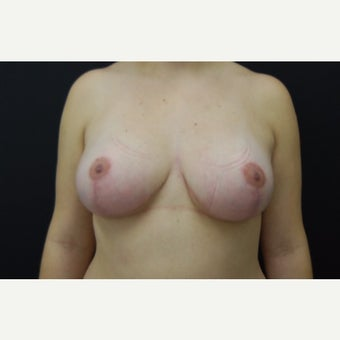 18-24 year old woman treated with Breast Lift 1788130